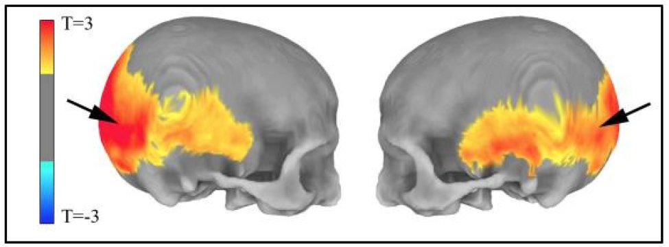 Neanderthal genes give clues to human brain evolution